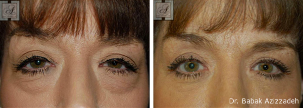 8ff59529a Female patient has lower blepharoplasty to improve the appearance of under  eye bags.