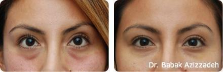 Dermal Fillers Beverly Hills Kuwait