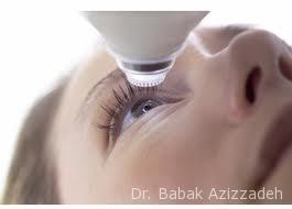 LASIK Surgery Beverly Hills Kuwait