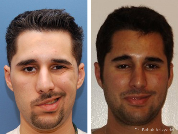 Before and After Northwestern Facial Plastic Surgery