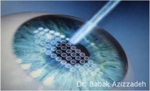 Signs You Need Femto-LASIK Kuwait
